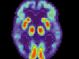 Alzheimer's disease: 6 signs to watch out for
