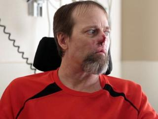 Man loses hands, feet to dog-related infection
